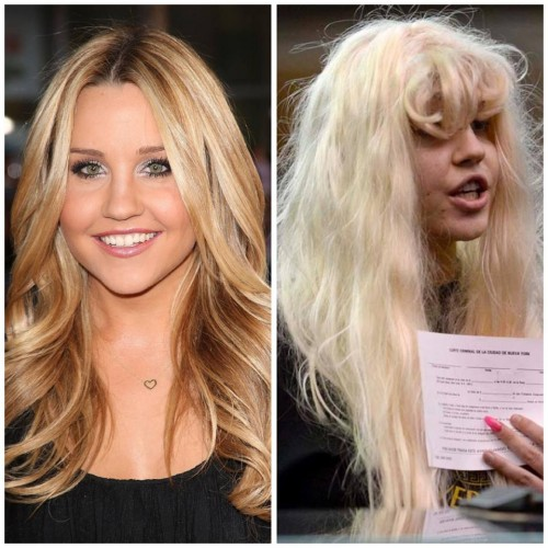 Amanda Bynes then and now.  This is what mental illness looks like, and it is not pretty.  Were this you, or someone you love, can you imagine celebrity sharks following them everywhere, capturing the inevitable decline?