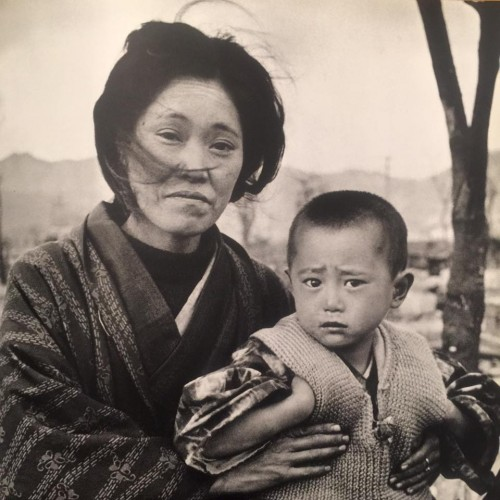 Japanese mother and child in the aftermath of Hiroshima.