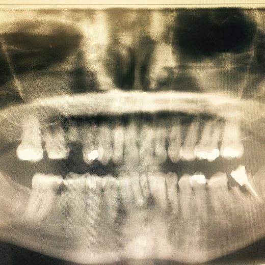 BEHOLD. My dental shame. This is what 13 years of neglect looks like.